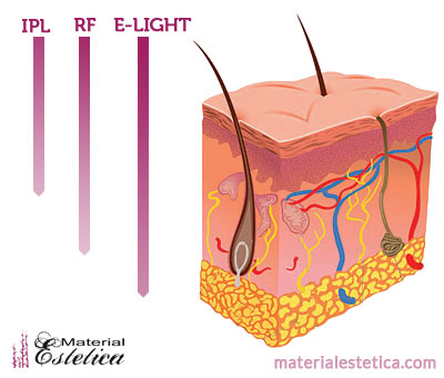 Benefits Of E Light Intense Pulsed Light Ipl And Radio