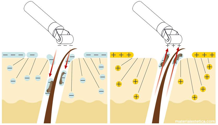 Cómo funciona la corriente galvánica (iontoforensis)